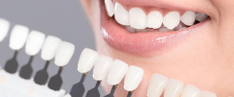 Bezpieczne wybielanie zębów w domowym zaciszu. Tych produktów potrzebujesz, by olśniewać uśmiechem!