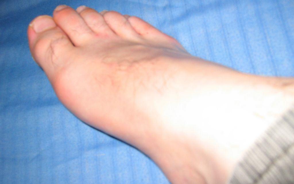 Ból stopy, zaburzenia czucia, uszkodzenia chrząstek stawowych, wreszcie trwałe deformacje, także kostne: oto początkowe objawy neuroartropatii
