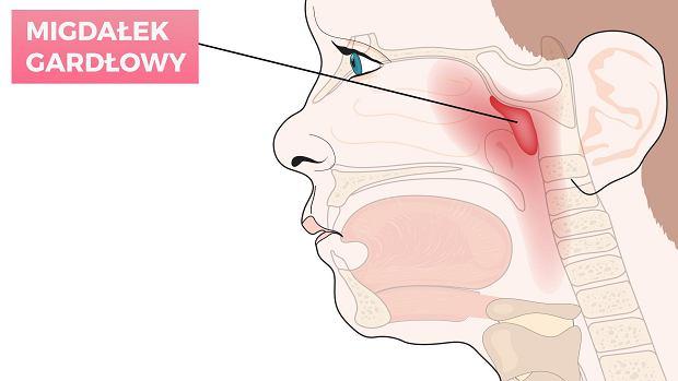 Adenotomia u dzieci (usunięcie trzeciego migdałka) - wskazania, powikłania, przeciwwskazania