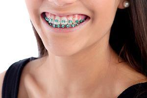 Aparat ortodontyczny dla ozdoby? Dla nastolatków to modny gadżet. Dentystka: Gabinet dentystyczny to nie salon urody