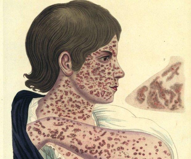 Ilustracja z 'Encyclopaedia Londinensis' z 1822 r. ukazująca twarz chorego na odrę z opisem charakterystycznych jej objawów: ostry ból gardła, nieżyt błony śluzowej nosa i spojówek, stan zapalny górnych dróg oddechowych, suchy kaszel, wysoka gorączka, a po kilku dniach wysypka o charakterze gruboplamistym, kolorze różowym, zlewająca się. Najpierw umiejscawia się na twarzy, za uszami i na czole, postępuje w dół, obejmując całą powierzchnię ciała. Stopniowo ta wysypka zmienia kolor na ceglasty, a naskórek łuszczy się 'otrębiasto'.