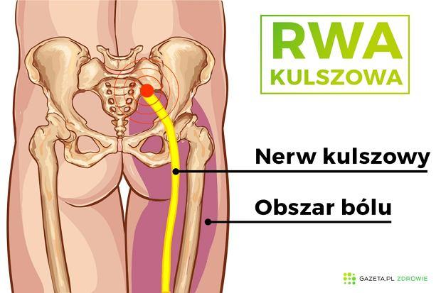 Najbardziej charakterystycznym objawem rwy kulszowej jest jednostronny, ostry ból kończyny dolnej i kręgosłupa w w części lędźwiowej