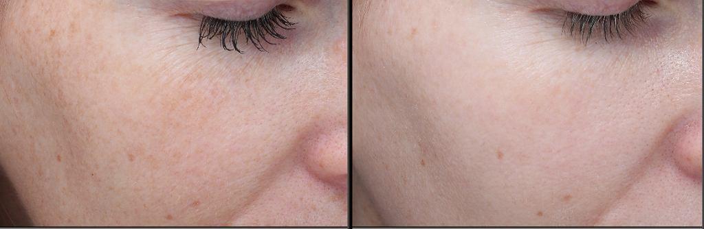 Rozjaśnienie kolorytu skóry i zlikwidowanie przebarwień.