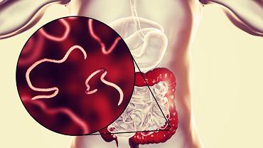Najczęściej pasożyty ludzkie występują w układzie pokarmowym, jednakże mogą atakować i bytować w mózgu, wątrobie czy płucach