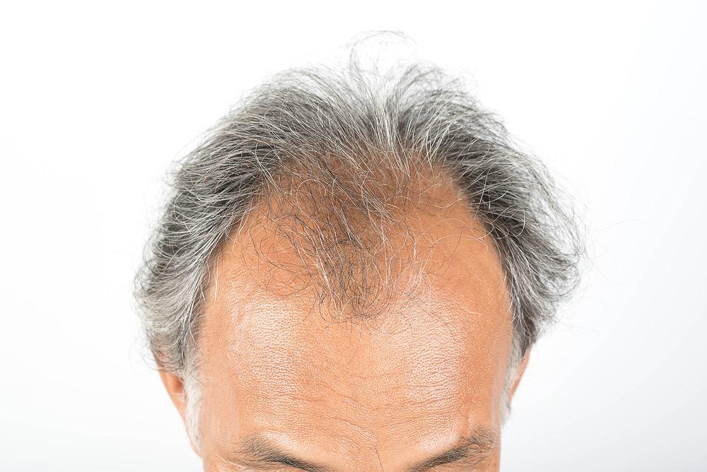 Łysienie androgenowe to jedna z częstszych przyczyn utraty włosów u osób dorosłych