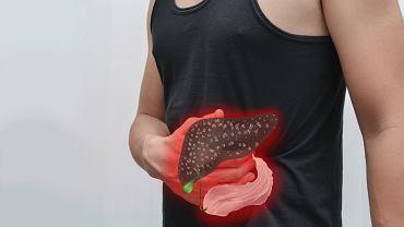 Lizosomalna kwaśna lipaza sprawia, że niestrawiony cholesterol i trójglicerydy zalegają w wątrobie i śledzionie.