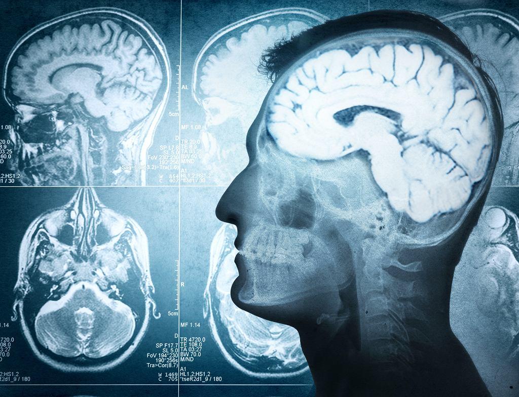 Złamanie podstawy czaszki