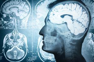 Złamanie podstawy czaszki: skutki, sposoby leczenia
