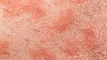 Ziarniniak rzadko stanowi samodzielną jednostkę chorobową. U większości pacjentów stanowi jedynie objaw innego schorzenia