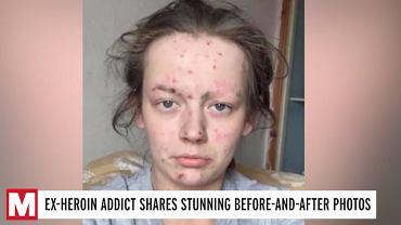 Była uzależniona od narkotyków, musiała pójść na odwyk. Ma za sobą niezwykłą metamorfozę. Trudno ją rozpoznać