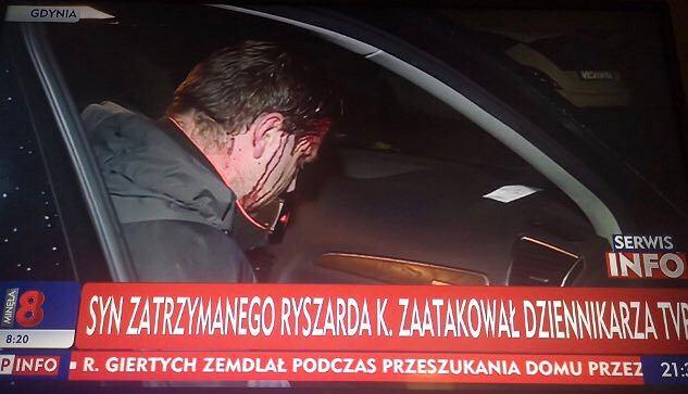 Operator TVP pobity przed domem Ryszarda K.