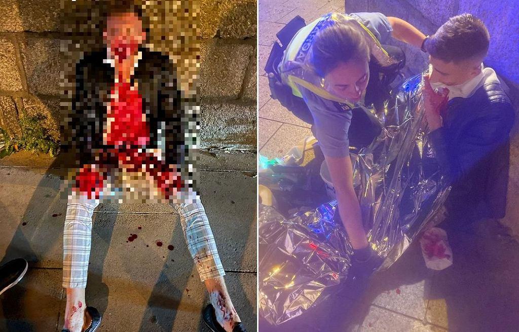 Jack Woolley pobity w centrum Dublina
