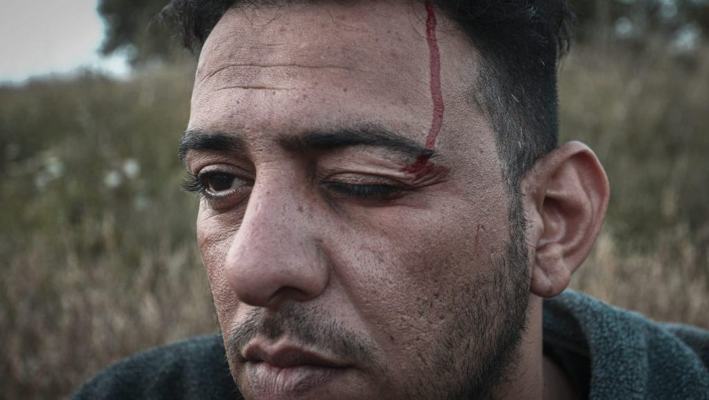 Mohammed, from Iraq, is seen in a field after having been forced over the border from Belarus, where he claims he was physically assaulted by the authorities, on 14 August, 2021 in Minkowce, Poland.