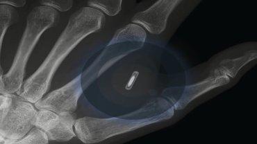Chip wszczepiony w dłoń