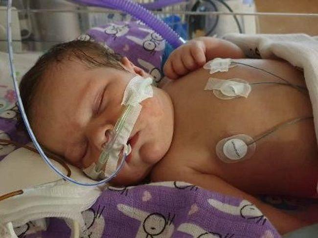 Rozalka pilnie potrzebuje operacji serca. Na ratunek pozostało jej zaledwie kilka dni