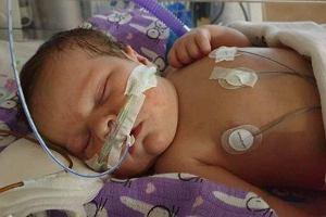 Rozalka pilnie potrzebuje kosztownej operacji serca. Na ratunek pozostało jej zaledwie kilka dni