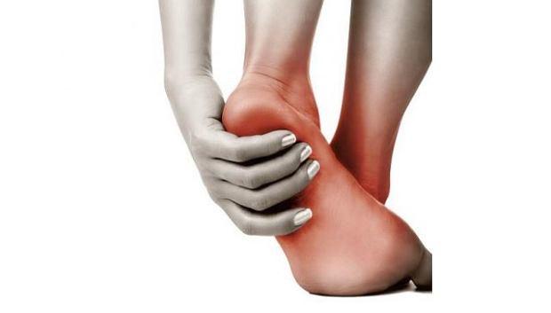 Zapalenie rozcięgna podeszwowego u biegaczy, przyczyny, objawy, leczenie