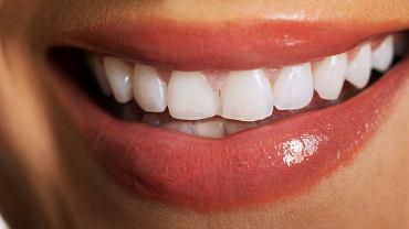 Prawda czy mit: wybielanie zębów szkodzi