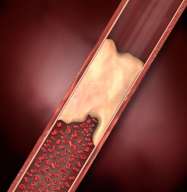 Jedną z metod pozwalających udrożnić naczynia krwionośne jest embolizacja