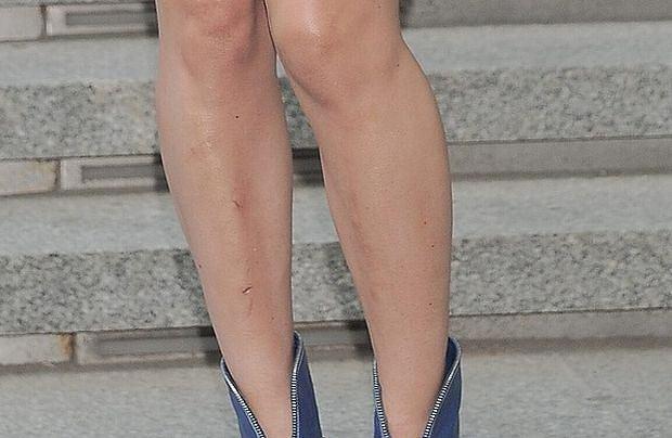 Doda nogi, siniaki, zadrapani
