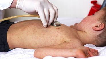 Wirus odry