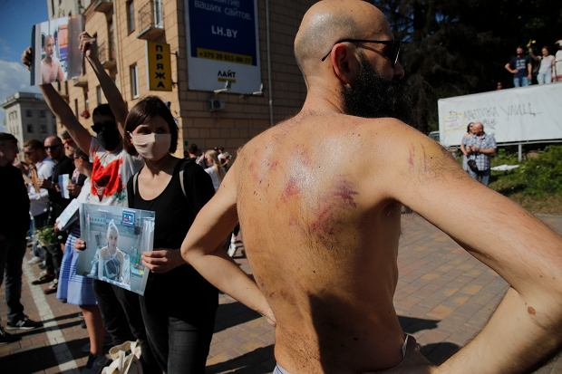 Ślady tortur na ciele protestującego w Mińsku.