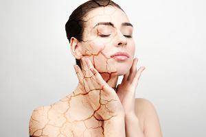 Sucha skóra - to może być objaw poważnej choroby