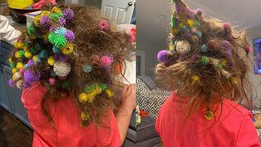 Zabawka wplątana we włosy