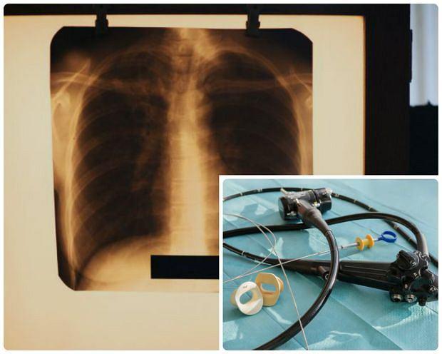 Endoskopowa cholangiopankreatografia wsteczna (ECPW) to specyficzne połączenie endoskopii i badania rentgenowskiego