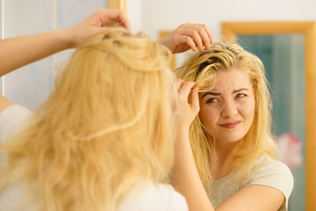 Tłuste włosy i łupież tuż po umyciu włosów Oto błędy, które prawdopodobnie popełniasz