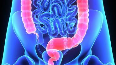 Pierwsze objawy zawału jelita częściej brane są za problemy z żołądkiem