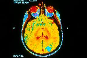 Nie lekceważ stresu! Przez niego dosłownie kurczy się mózg i pogarsza pamięć [NOWE BADANIA]